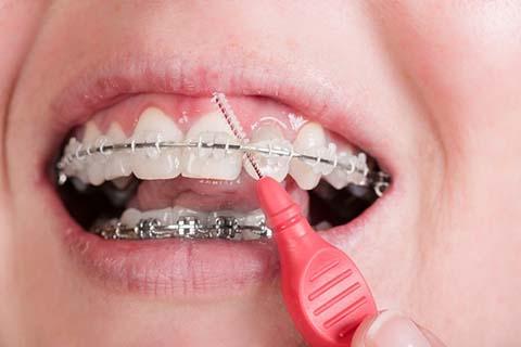 ortodontia higiene bucal